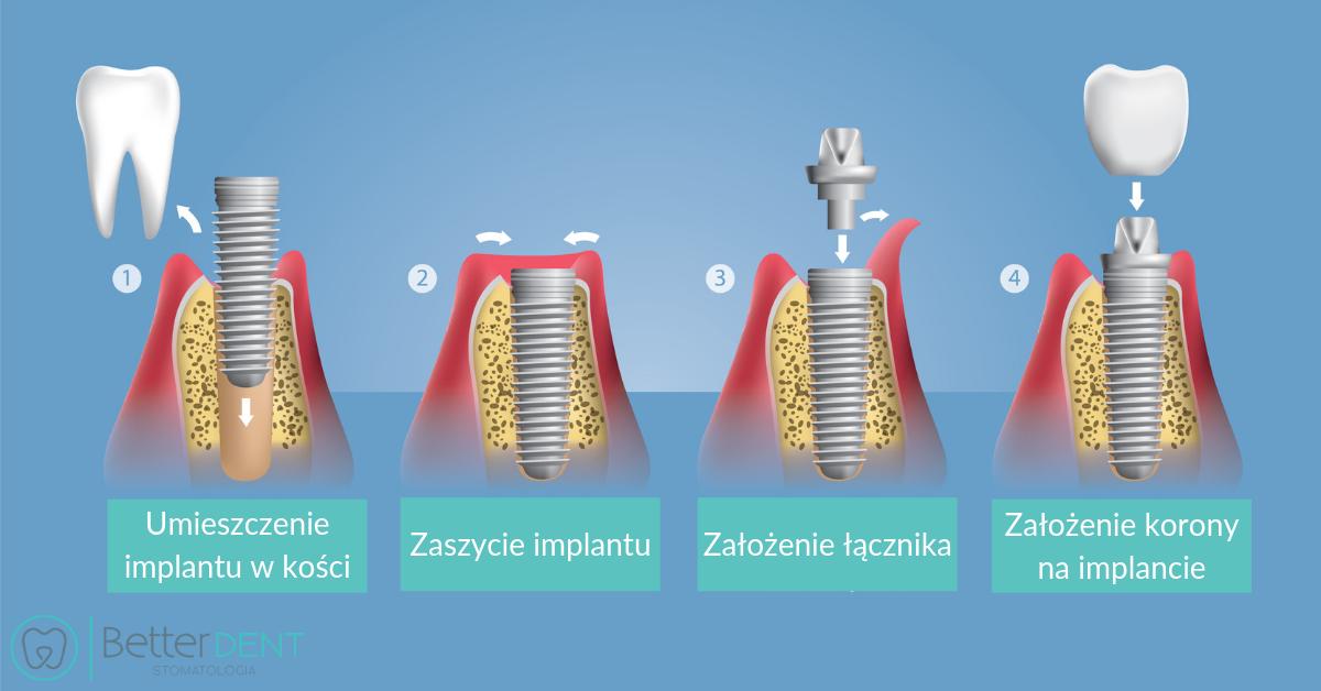 implanty zębowe jak wygląda leczenie